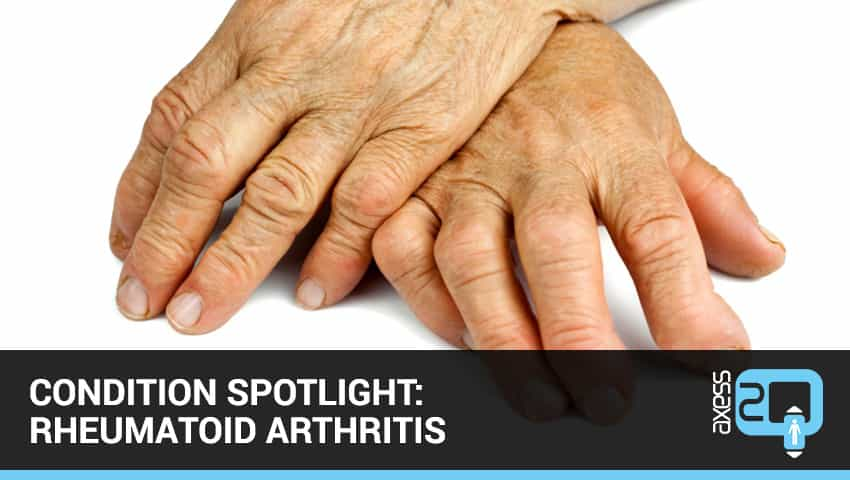 Condition Spotlight: Rheumatoid Arthritis